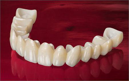 oksid-cirkoniya-v-stomatologii