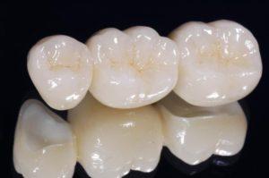 Оксид циркония в стоматологии: его преимущества и стоимость
