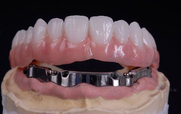 balochnyj-protez-na-implantah