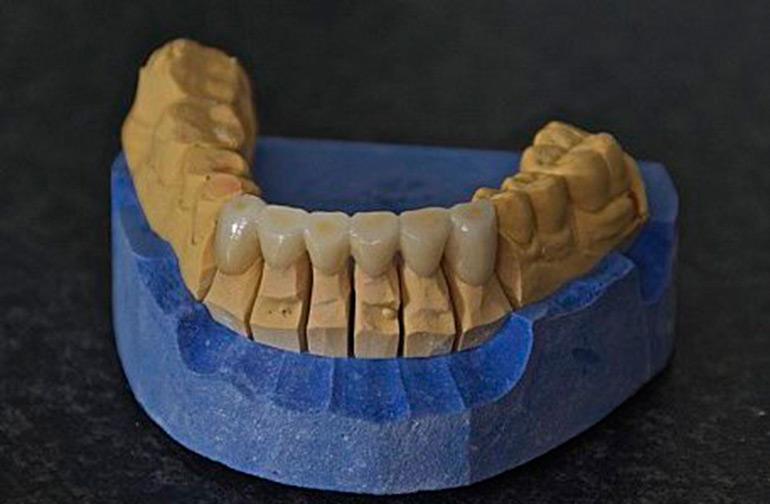 bezmetallovaya-keramika-foto