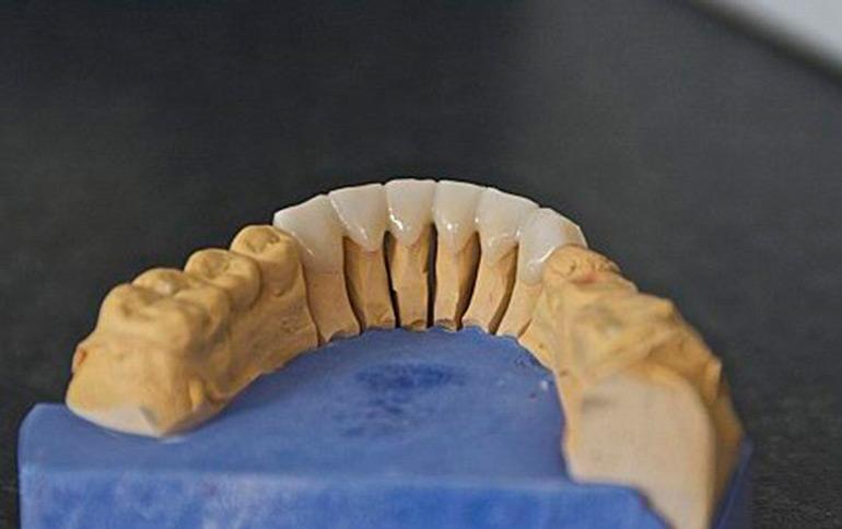 keramika-na-karkase-iz-dioksida-cirkoniya