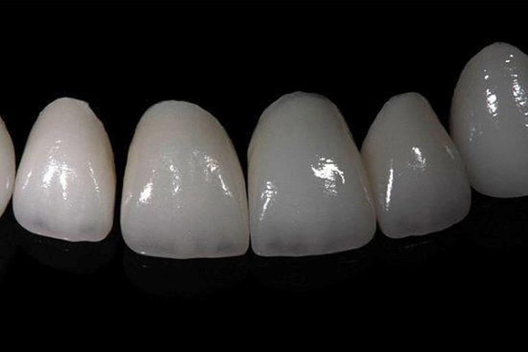 odinochnye-koronki-iz-oksida-cirkoniya