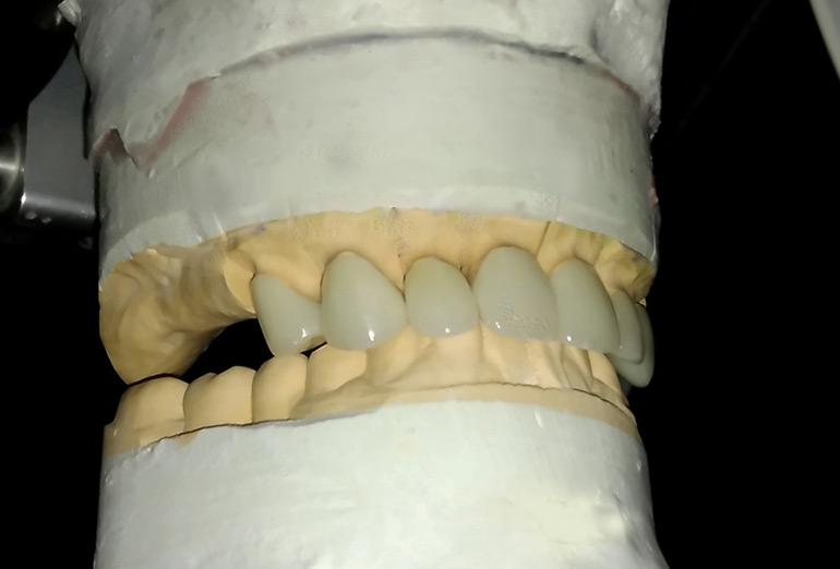 Безметалловая керамика: фото протезов