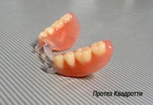 zubnye-protezy-kvadrotti