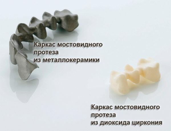 Мостовидные протезы: понятие и виды