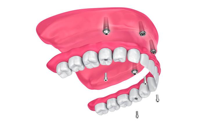 nesemnye-zubnye-protezy-na-zubnyh-implantah