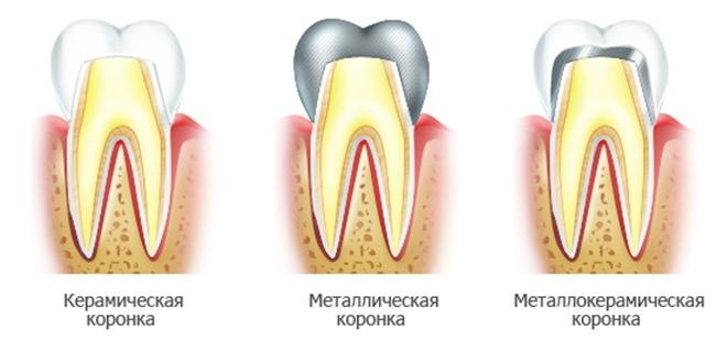 metallokeramicheskie-protezy