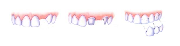 mostovidnye-nesemnye-zubnye-protezy