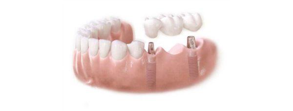 mostovidnye-protezy-zubov