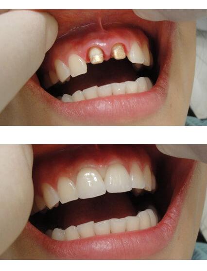 nesemnye-zubnye-protezy