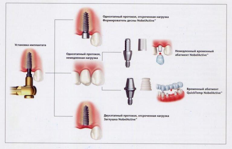 odnomomentnaya-implantaciya-zubov