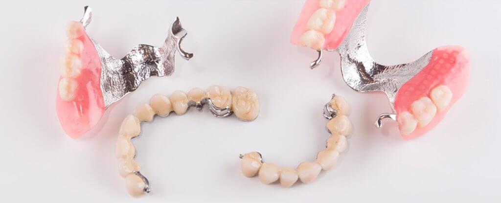 byugelnoe-protezirovanie-zubov
