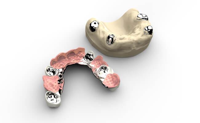 Несъемное протезирование на имплантах: плюсы и минусы