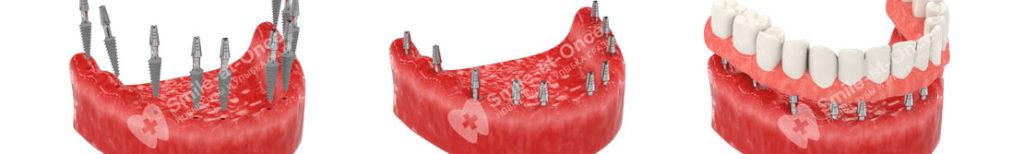 zubnye-protezy-na-implantah