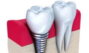 Несъемные зубные протезы: показания к установке, фото
