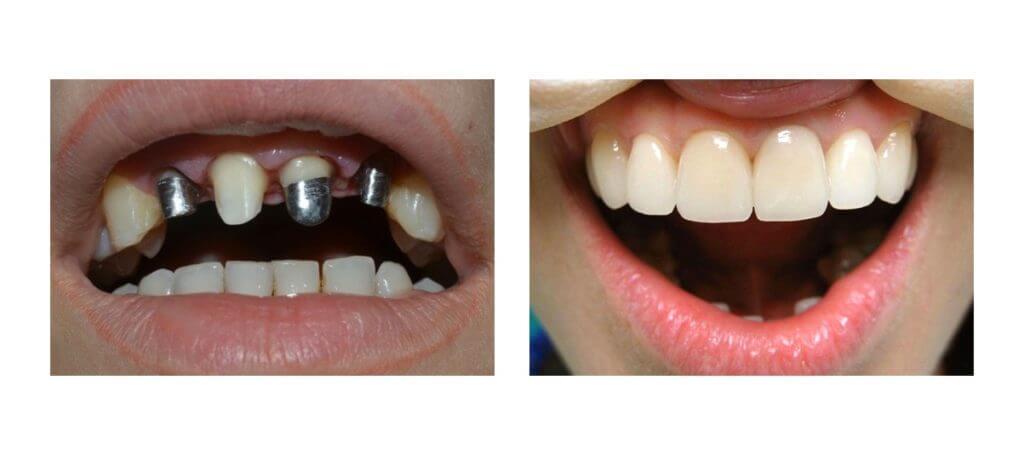 zubnye-protezy-iz-metallokeramiki