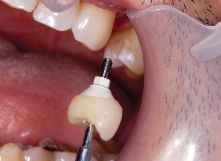koronki-na-implanty
