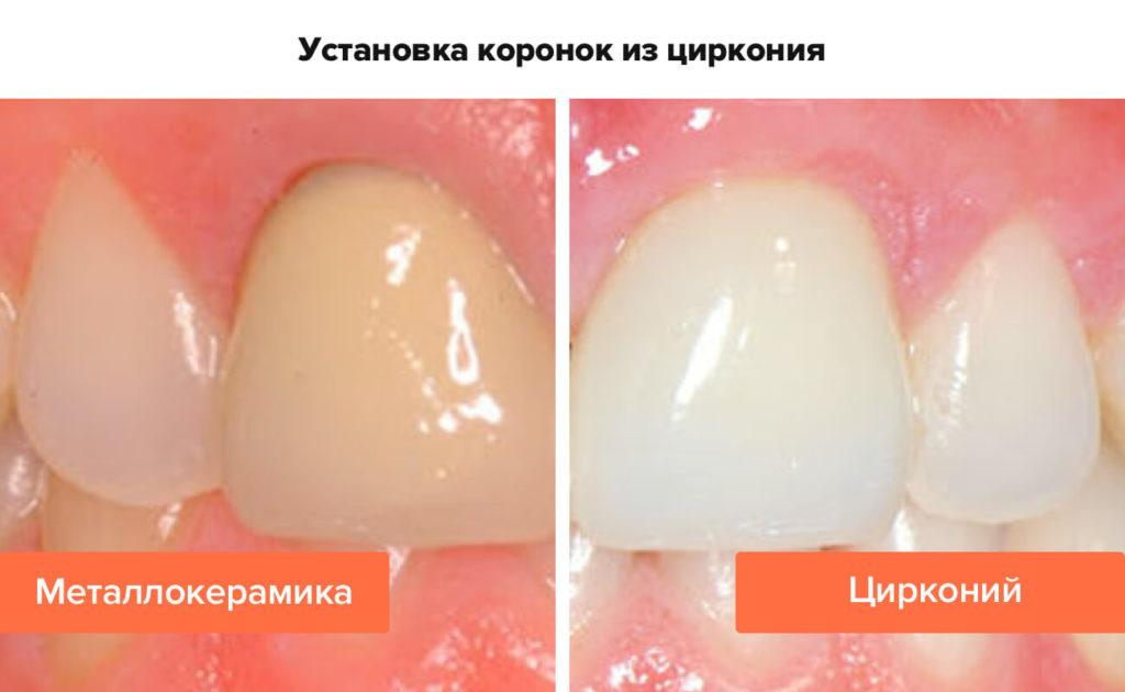 metallokeramika-ili-cirkonij