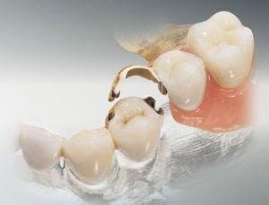Одномоментная имплантация зубов: что это, ее плюсы и минусы, показания к процедуре