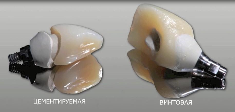 vintovaya-fiksaciya-koronok-na-implanty