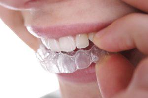 Прозрачные зубы: почему зубы становятся прозрачными, как лечить