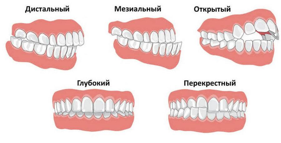 narusheniya-prikusa-vidy-patologij