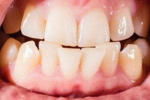 Окклюзия зубов: что это такое, как лечить нарушения прикуса