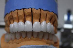 modelirovanie-zubov-iz-voska