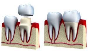 Виниры на кривые зубы: в каких случаях можно исправить кривизну зубов