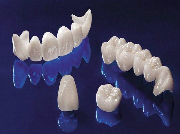 bezmetallovaya-keramika-cena