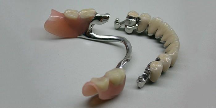 byugelnyj-protez-zubov-na-attachmentah
