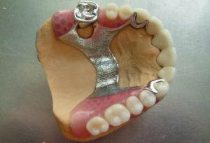 Реставрация жевательных зубов: виды восстановления, сколько стоит