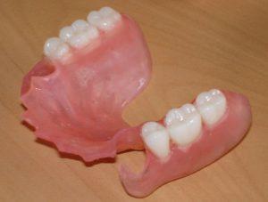 Протезирование при полном отсутствии зубов на верхней или нижней челюсти