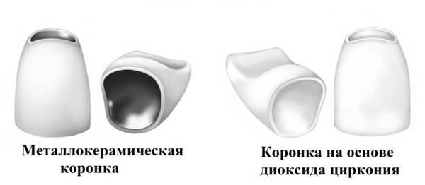 cirkonievaya-koronka-ili-metallokeramika-chto-luchshe