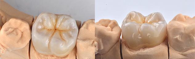 Диоксид циркония: особенности и преимущества циркониевых коронок
