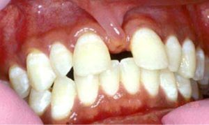 Реставрация зубов: фото до и после реставрации
