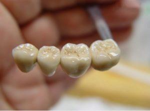 metallokeramicheskie-zubnye-protezy