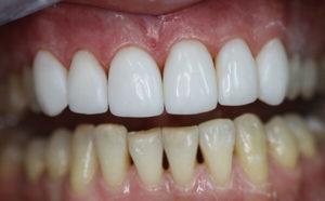 vosstanovlenie-ehmali-zubov