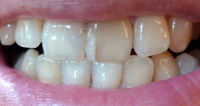 vosstanovlenie-perednih-zubov