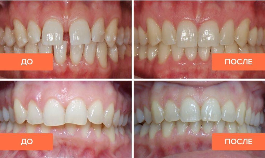 Элайнеры: фото до и после