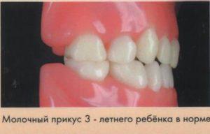 Идеальный прикус: каким должно быть идеальное смыкание зубов