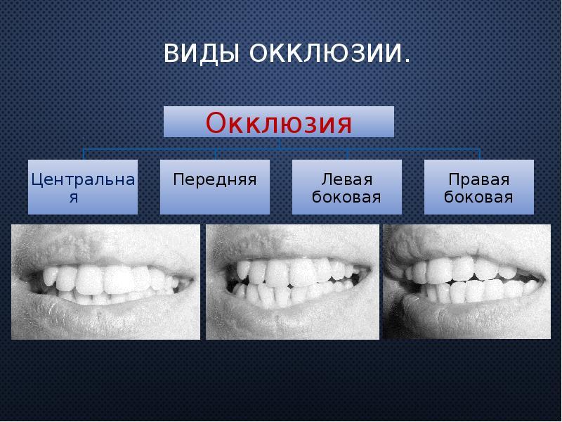 vidy-okklyuzii