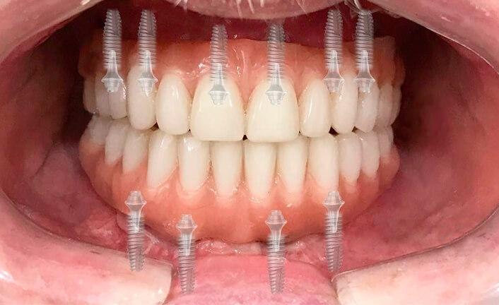 Полная имплантация зубов: как проводится процедура, виды имплантации и цена