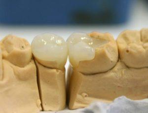 keramicheskie-vkladki-na-zuby