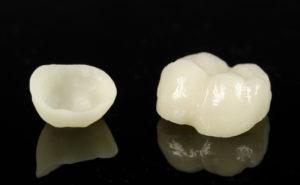 zubnye-vkladki-keramicheskie