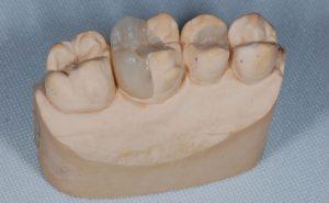 vkladki-dlya-zubov