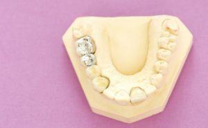 vkladka-v-zub-foto