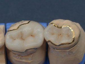 Керамические вкладки на зубы: что из себя представляют, когда устанавливаются