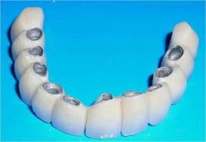 zubnye-protezy-metallokeramika