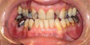 Пресс керамика в стоматологии: что это такое, ее преимущества и недостатки